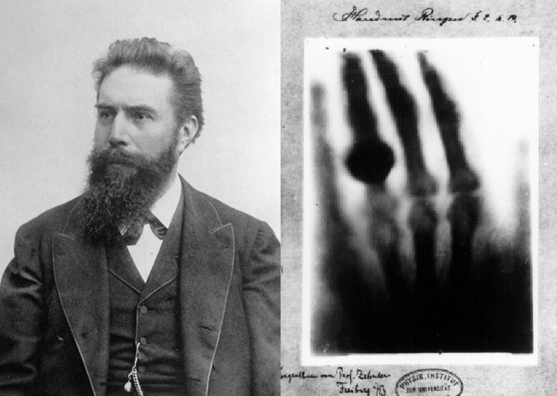 Wilhelm Conrad Roentgen with x-ray of wife's hand.